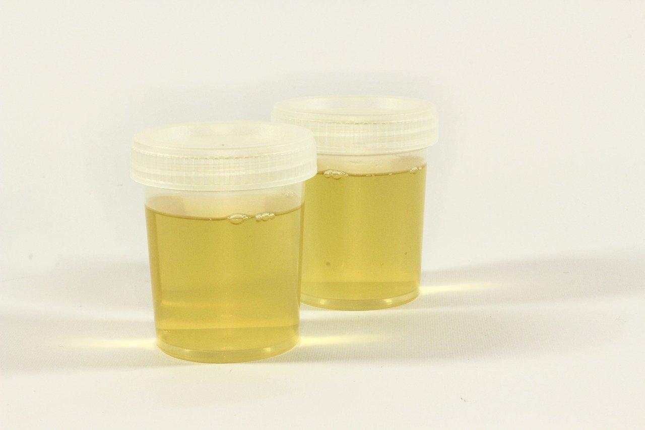 infection urinaire que faire