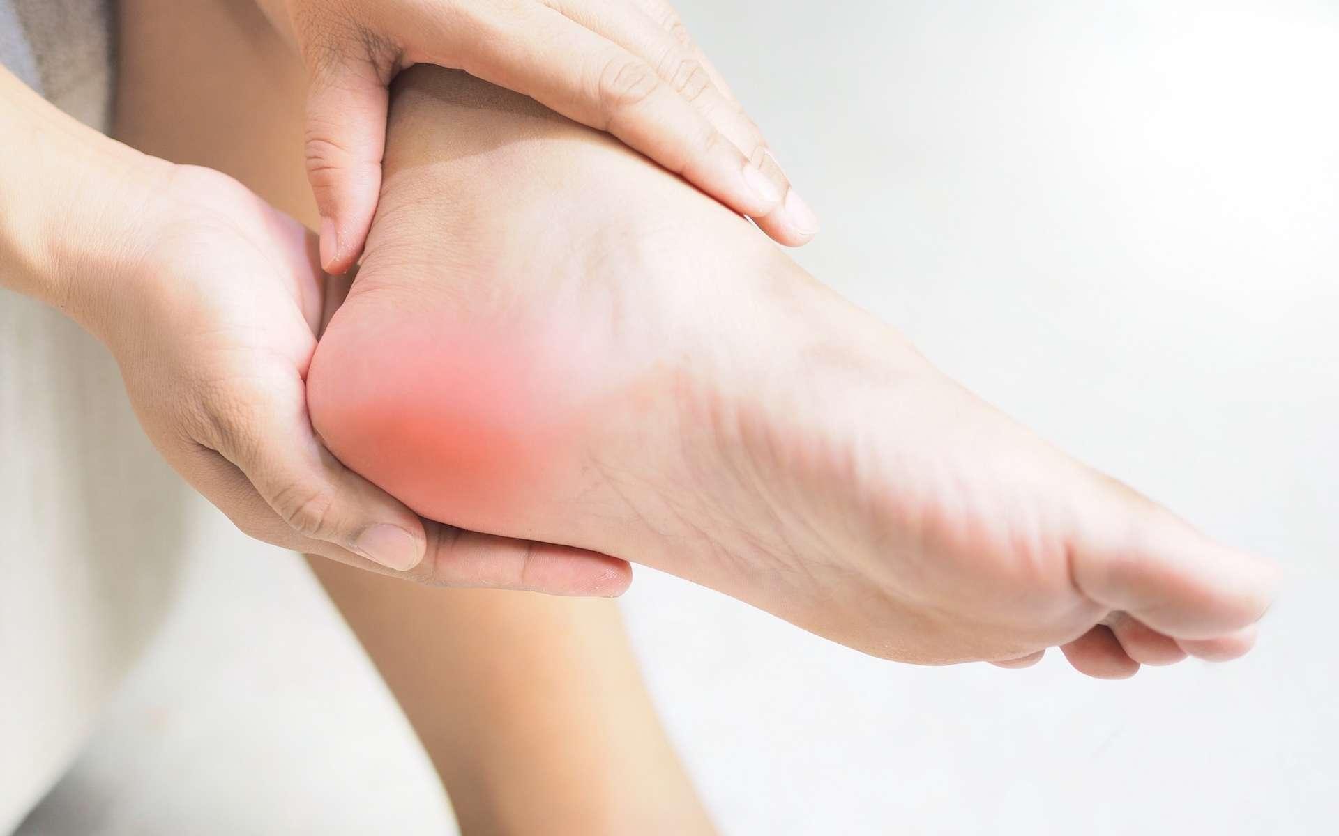 origine de la douleur talon